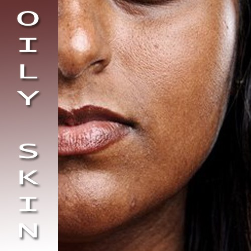 Lifestyle Habits that May Affect Oily Skin!