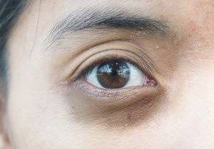 How to treat Hyperpigmentation around the eyes?